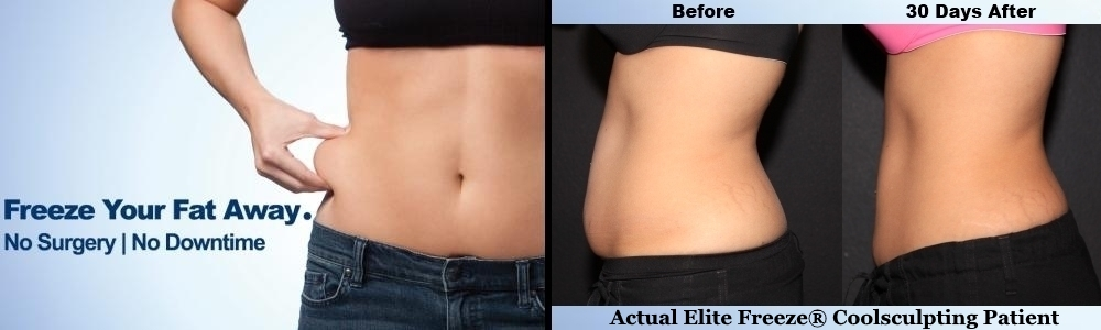 Elite-Freeze-CoolSculpting-Danville-CA1